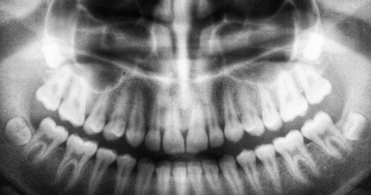 Как связаны зубы и внутренние органы согласно древней китайской методике