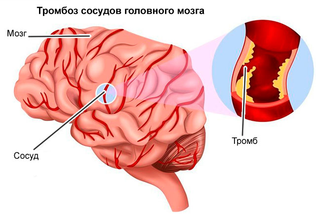 Как улучшить кровообращение мозга: 6 полезных советов