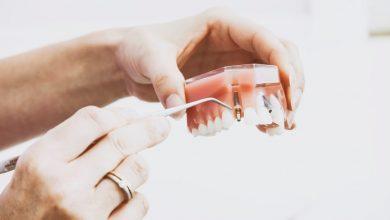 Стоматология — это не кариес-пломба-коронка! Это...
