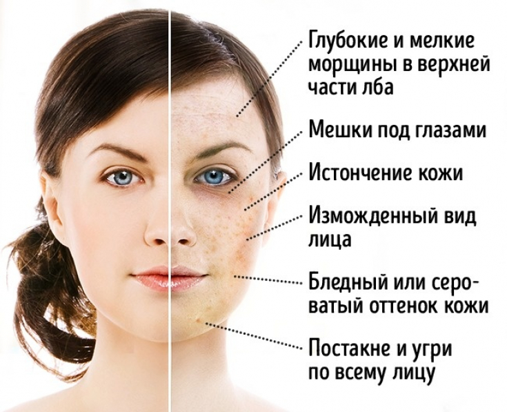 Пагубное влияние сахара на состояние кожи