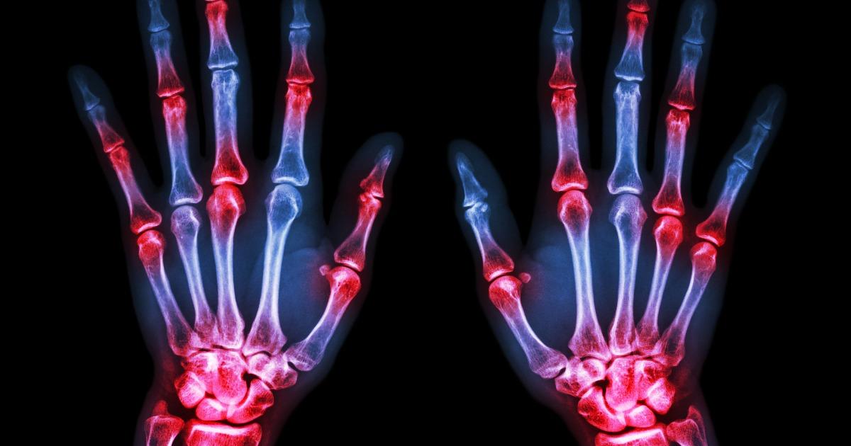 Диета при артрите: как питанием помочь костям и суставам
